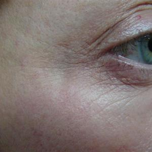 cosmetic wrinkle injections