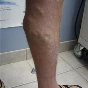 vein treatments pictures