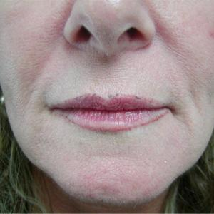 dermal fillers lip