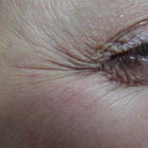 facial wrinkle treatment