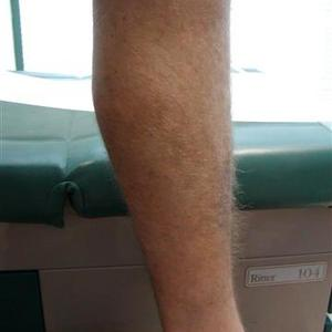 treatment for varicose vein