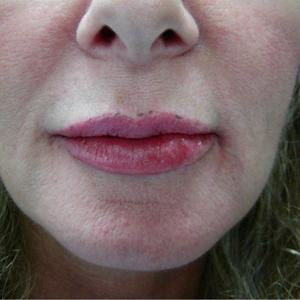 dermal fillers for lips