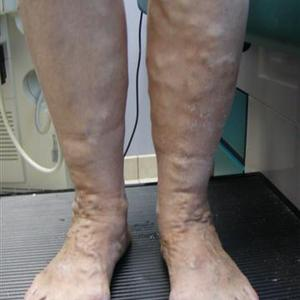 treating varicose vein