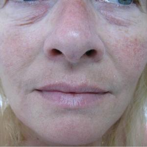 dermal fillers under eyes