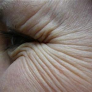 eye wrinkle treatments