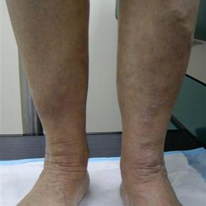how to treat varicose vein