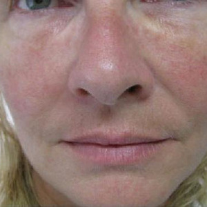 dermal fillers for eyes