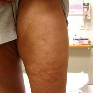 picture of leg vein treatment
