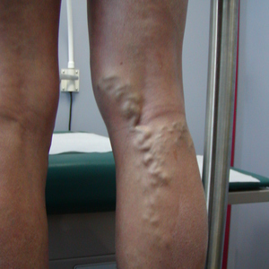 image of leg vein treatment