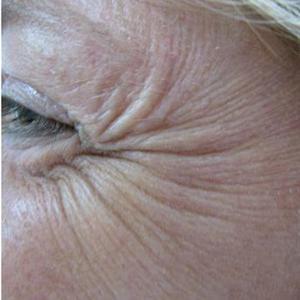 under eye wrinkles treatments