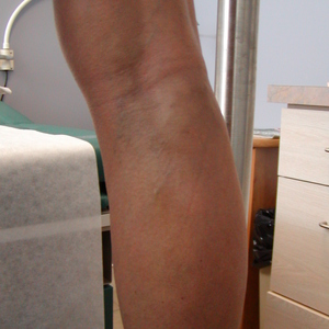 vein treatment for leg