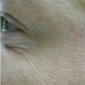 under eye wrinkles treatment pictures