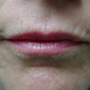lip dermal fillers