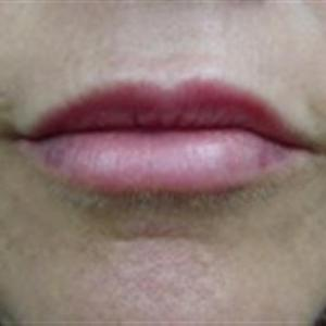 dermal fillers for lips before and after