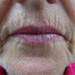 dermal fillers for frown lines