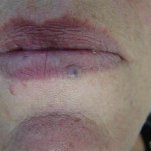 facial vein treatment