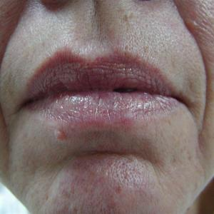 facial vein laser treatment before and after