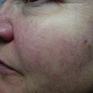treating facial vein