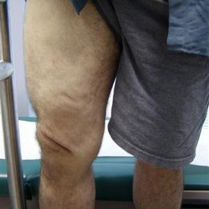 sclerotherapy treatment results