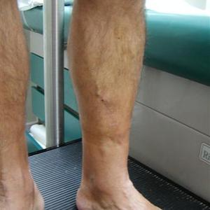 best sclerotherapy treatment