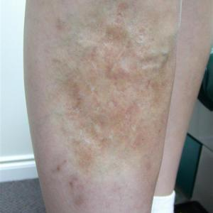sclerotherapy treatment for vein in leg