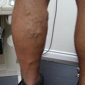 laser sclerotherapy treatment