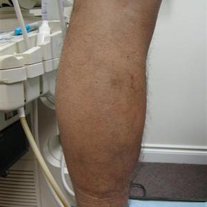 sclerotherapy aftercare